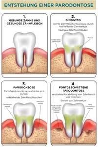 Zahngesundheit Diabetes