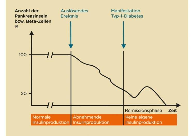Entwicklung des Typ-1-Diabetes