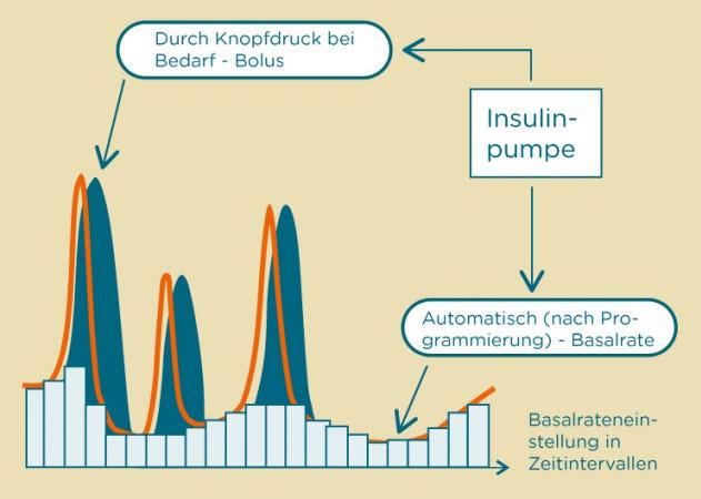 Insulinabgabe mit der Insulinpumpe